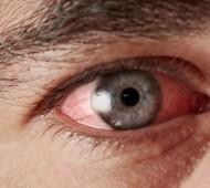 675px kırmızı göz